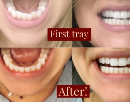My Invisalign Journey - Was it Worth it?! & 10 Myths